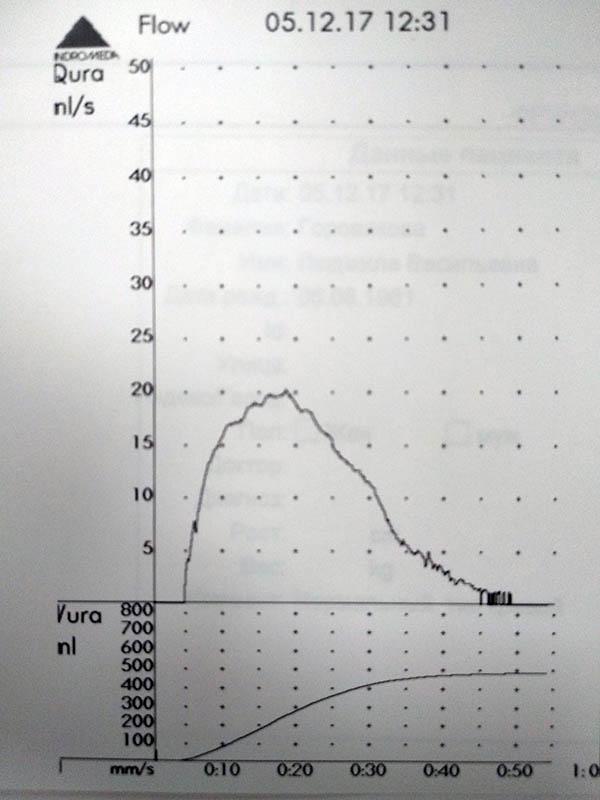 нормальный тип кривой мочеиспускания
